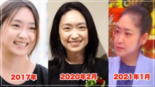 池脇千鶴が老けて顔変わった?原因は病気?昔と現在を画像比較!