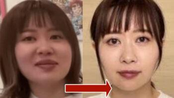 画像比較|エミリンの激痩せがヤバい…原因は炎上ストレス&整形?